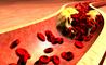 colesterolo alto e alzheimer: quello strano legame