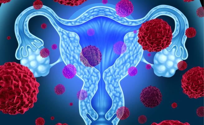 Test HPV per il Papilloma Virus Humano