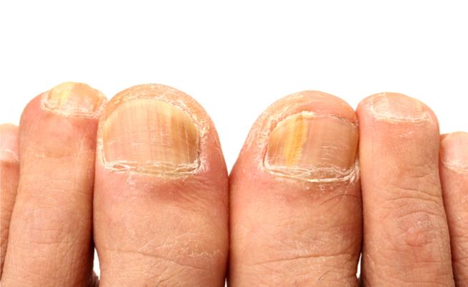 Cause e rimedi per le unghie gialle