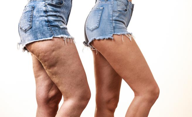 Come nascondere la cellulite: 10 trucchi