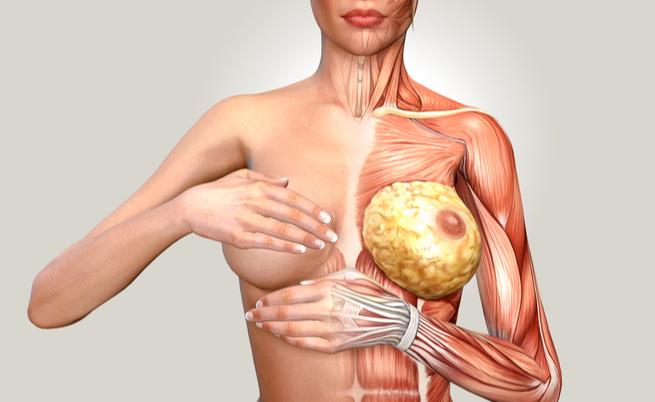 Seno fibrocistico: il rischio di Tumore è alto?