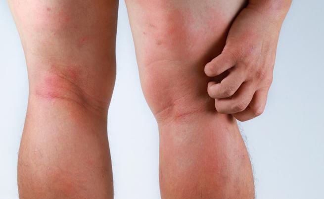 antibiotici e sole: gli effetti collaterali