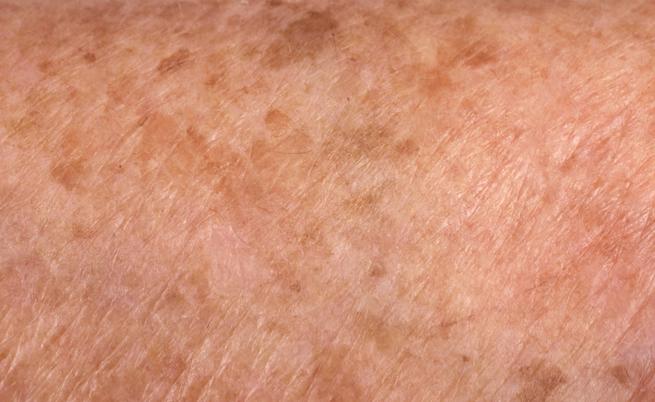 I rimedi della nonna per le macchie scure sulla pelle