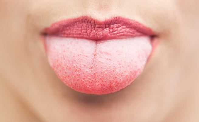formicolio alla lingua: le cause