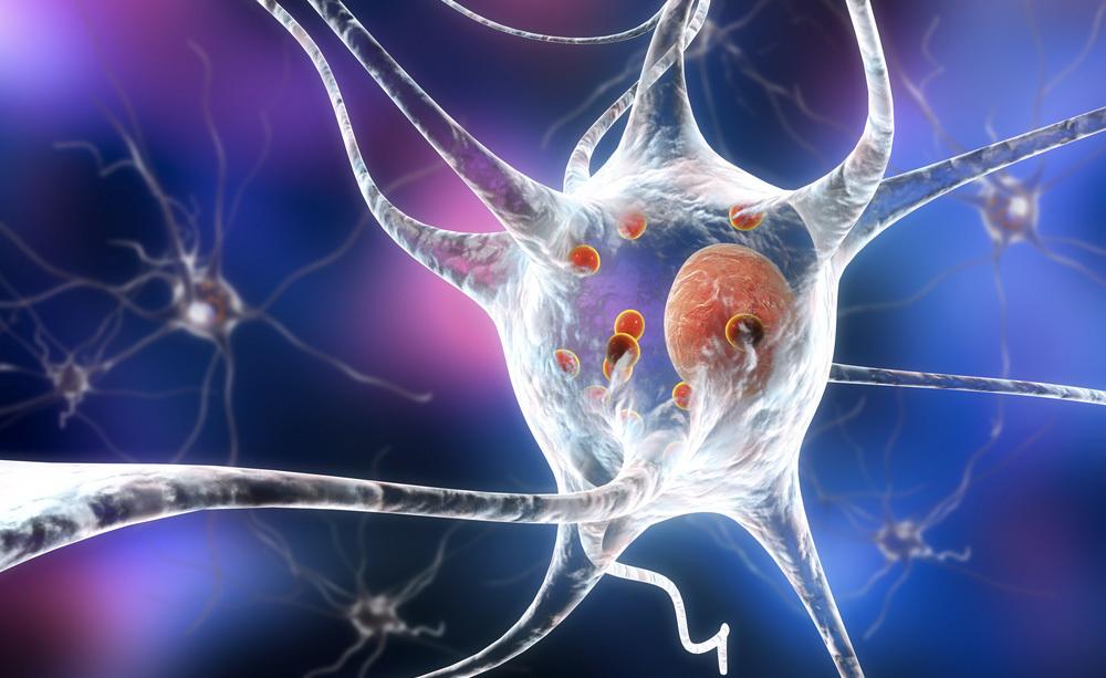 Parkinson e Difficoltà di Parola: ecco cosa Fare