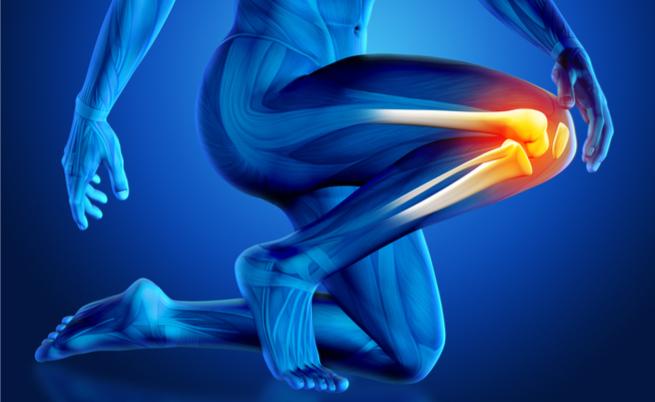 condropatia al ginocchio: quali sono le cure?