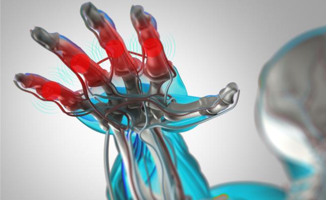 artrite reumatoide e cancro: il legame