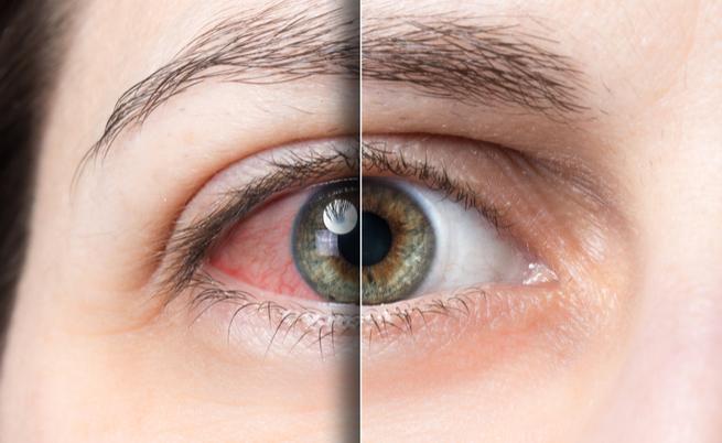 proprietà albicocche: proteggono gli occhi, il fegato e l'apparato digerente