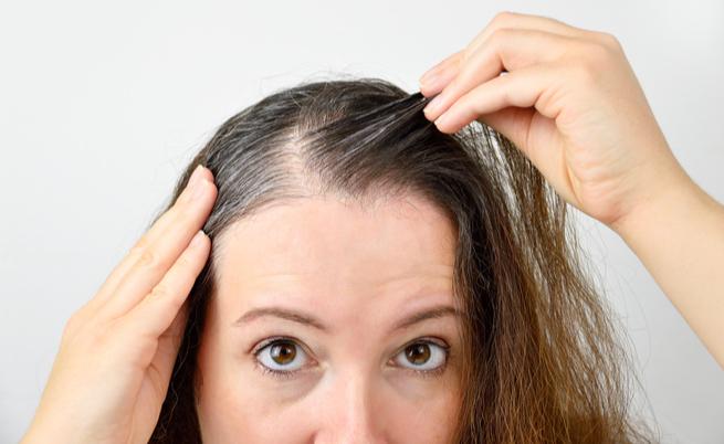stress e capelli bianchi: qual è il legame?