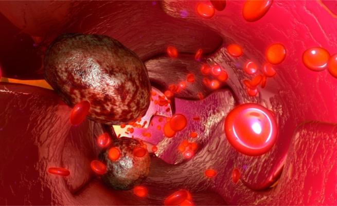 Giornata nazionale dei tumori del sangue