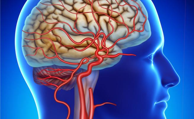 arterite di horton: sintomi e complicanze