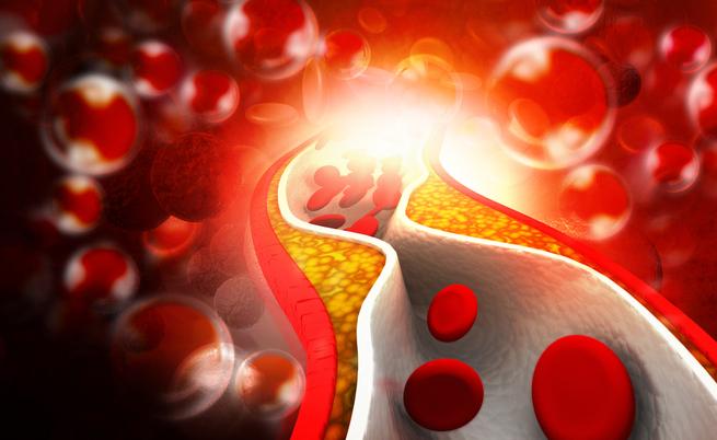 uova e colesterolo: c'è un aumento del rischio cardiovascolare?