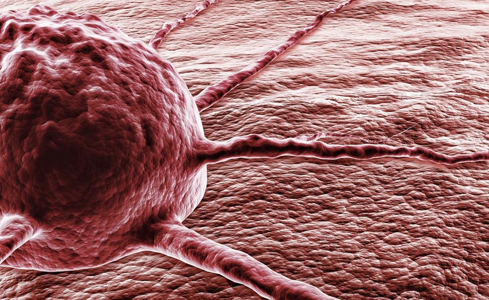 Tumore al colon e Biopsia Liquida