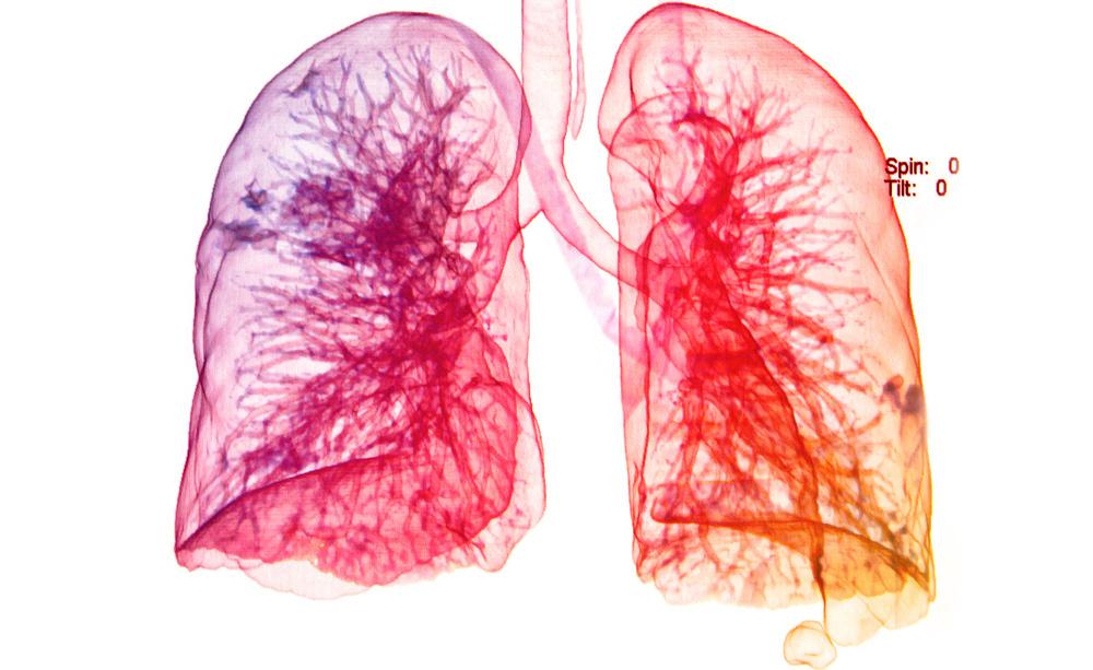 Inquinamento: gli Effetti sulla Salute