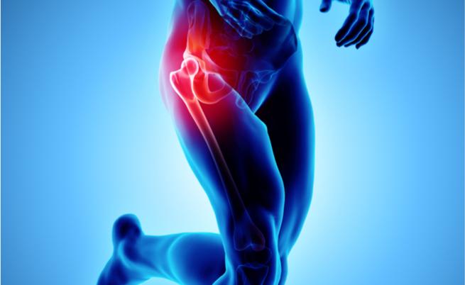 protesi anca: l'operazione chirurgica