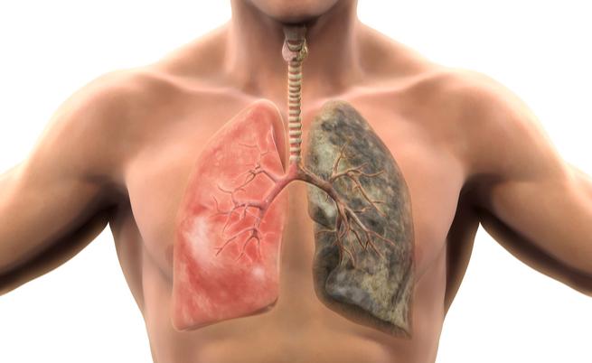 fumo e malattie: quali sono determinate dal tabacco