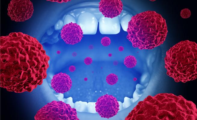 tumore testa, collo e bocca: cause e fattori di rischio