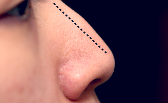 Costi rinoplastica: interventi per il setto nasale deviato