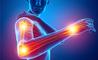 Le cause della debolezza alle braccia