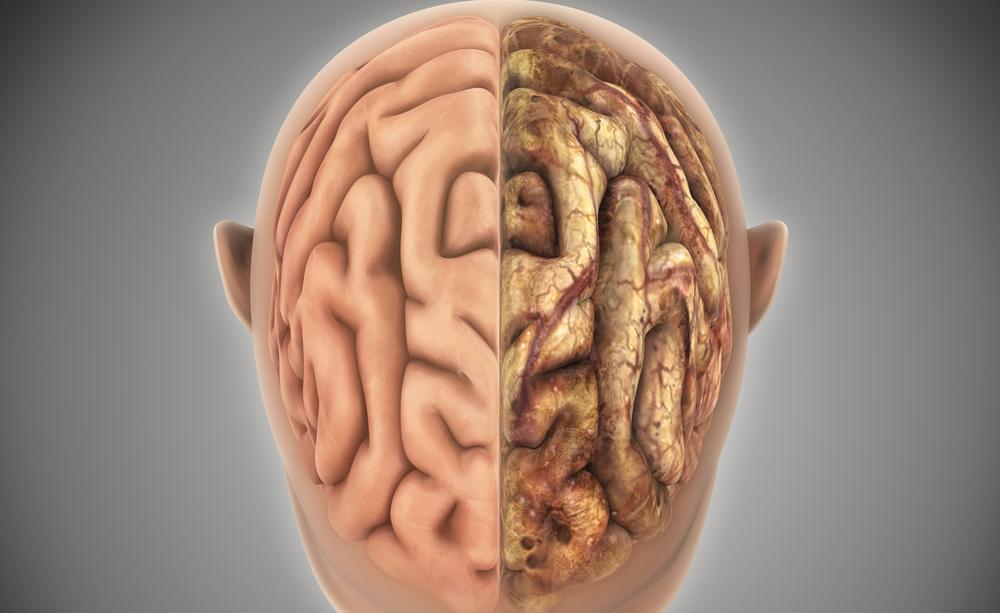 Ictus: i Sintomi per riconoscerlo e Prevenirlo