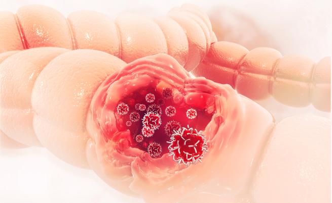 Tumore al colon: la dieta per prevenire il cancro e le recidive