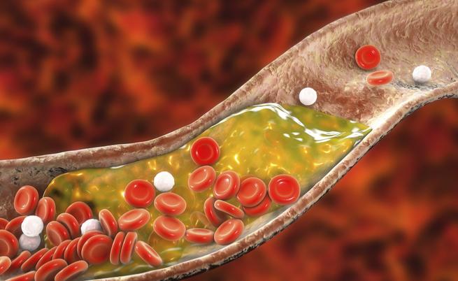 arteriopatia periferica: sintomi e cause