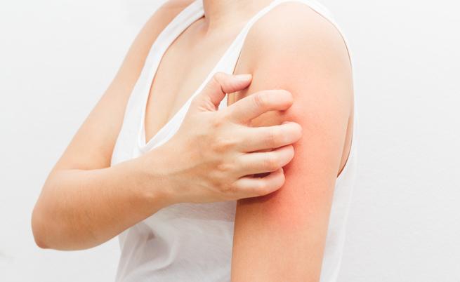 prurigo nodulare: cause e rimedi