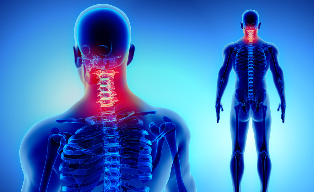 Cervicale e Apnee Notturne: il legame tra le due Patologie