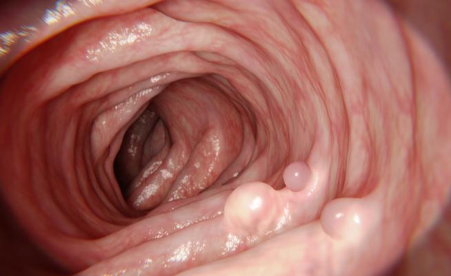 Polipectomia: l'asportazione di un polipo