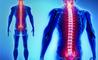 radicolopatia: sintomi, cause e cure
