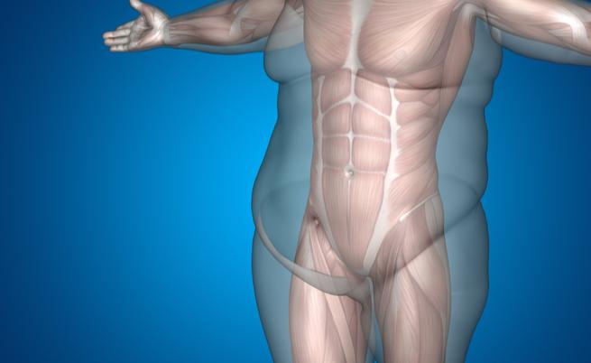 Intervento di riduzione dello stomaco per dimagrire: rischi e benefici