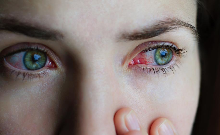 Glaucoma: le Cure più innovative
