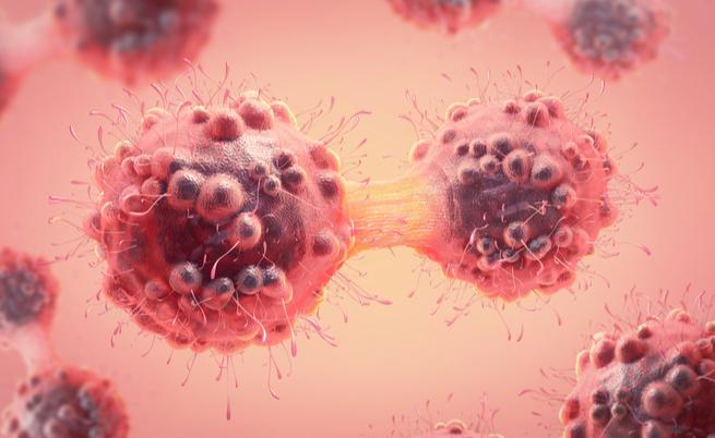 tumori sopravvivenza: quali sono i più curabili?