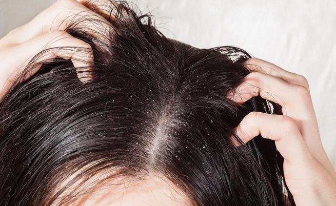 I rimedi capelli grassi: quali sono i trattamenti più efficaci?