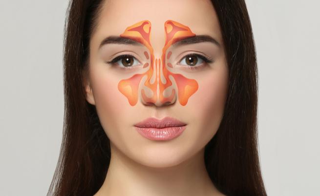 Quali sono i rimedi naturali contro la sinusite? Ecco i più efficacia