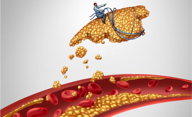 colesterolo negli anziani: quando i valori sono troppo alti?