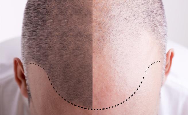 trapianto di capelli: costi e benefici