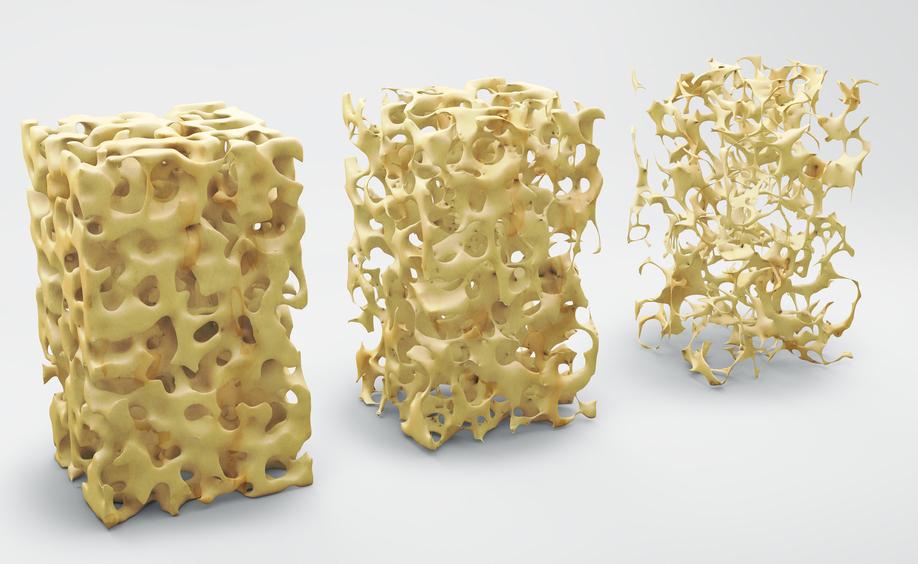 Osteoporosi: i consigli alimentare per trattare con la dieta i sintomi del disturbo