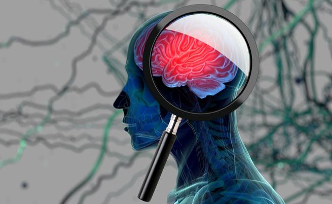 Alzheimer e zucchero: quale legame?