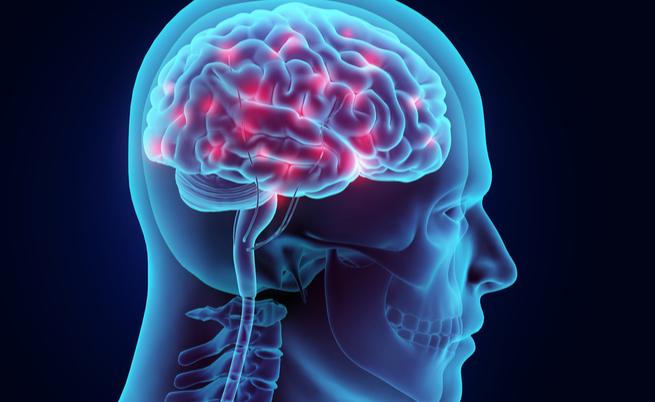 sindrome di tourette e stimolazione cerebrale profonda