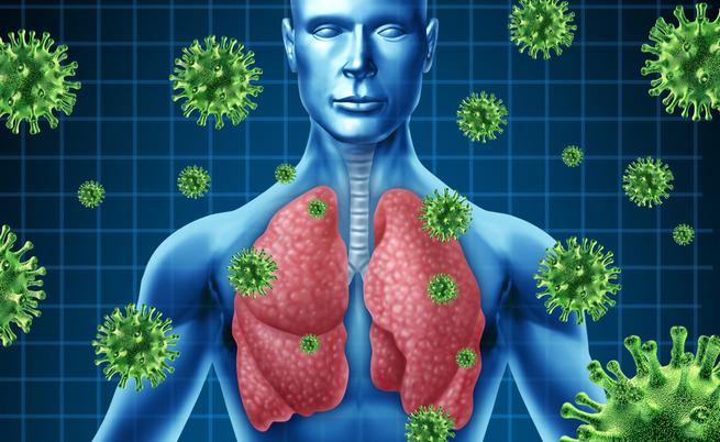 cipolle per influenza: un rimedio contro virus e batteri?