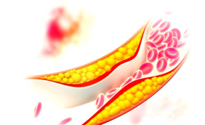 Uova e colesterolo: le uova fanno male a chi soffre di colesterolo?
