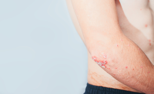 Fototerapia per malattie della pelle: psoriasi, dermatite ed eczema