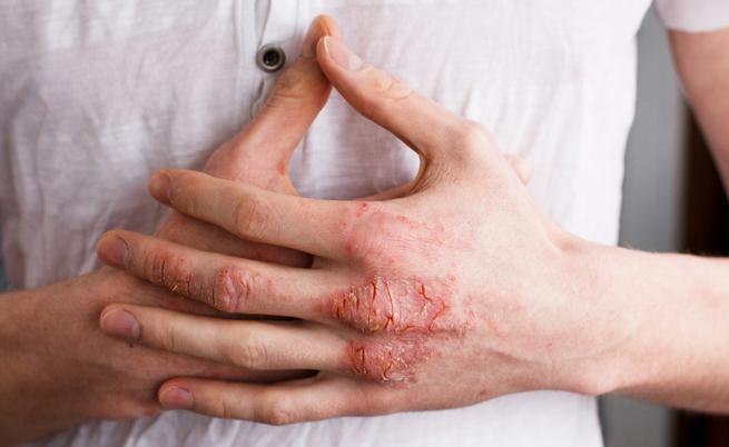 Eczema: sintomi, cause e cure