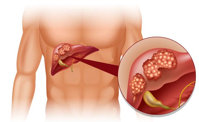 Erbe cancro al fegato: ecco quali sono
