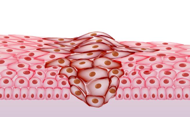 Carciofi: perché proteggono dai tumori