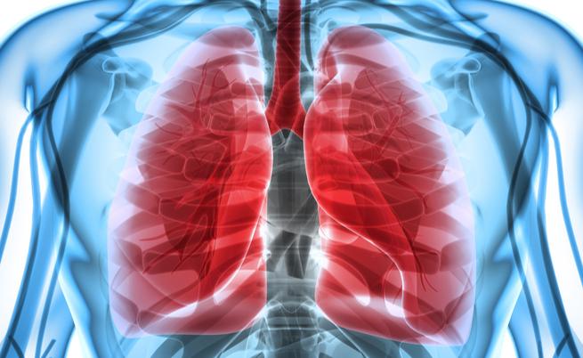 Addensamento polmonare: tutte le cause