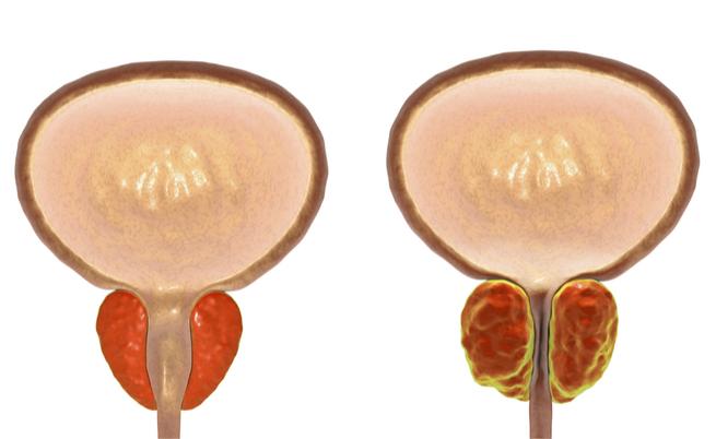 A krónikus prosztatitis befolyásolja a fogantatást