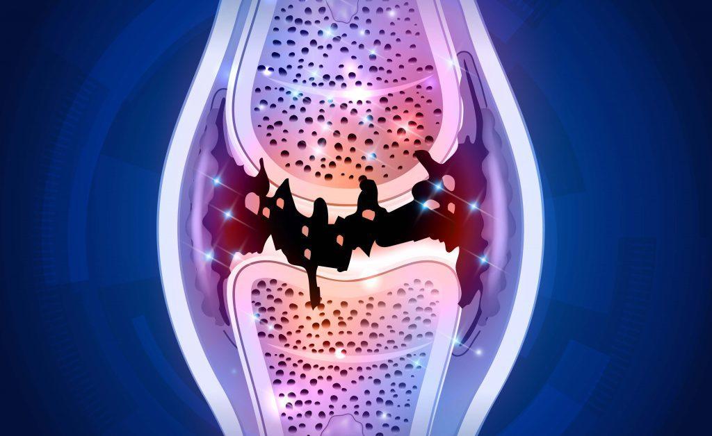 dolori articolari in menopausa: come trattarli naturalmente