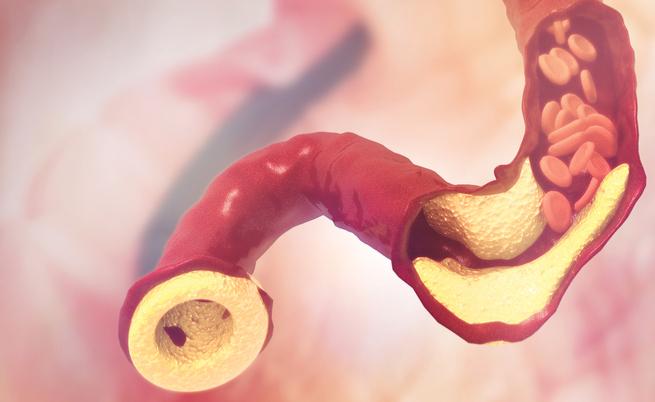 Colesterolo alto: ecco la molecola che lo abbassa